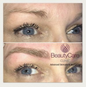 Eyebrow Microblading - Beauty Care Clinic